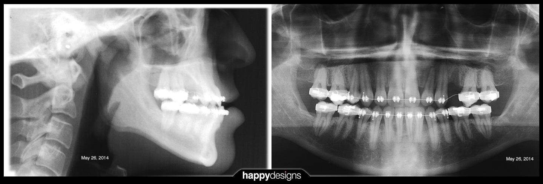 20140526 - x-rays