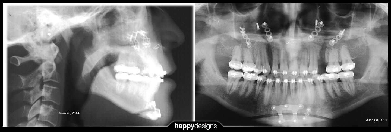 20140623 - x-rays